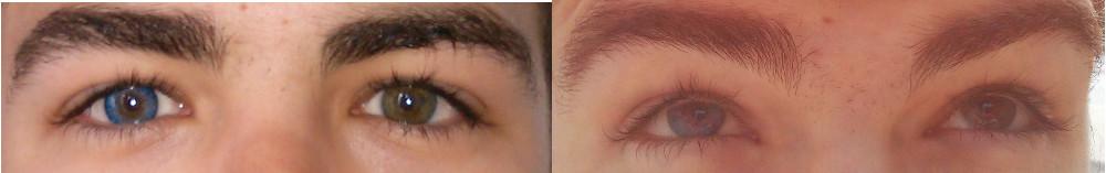 Augen mit einer Farblinse